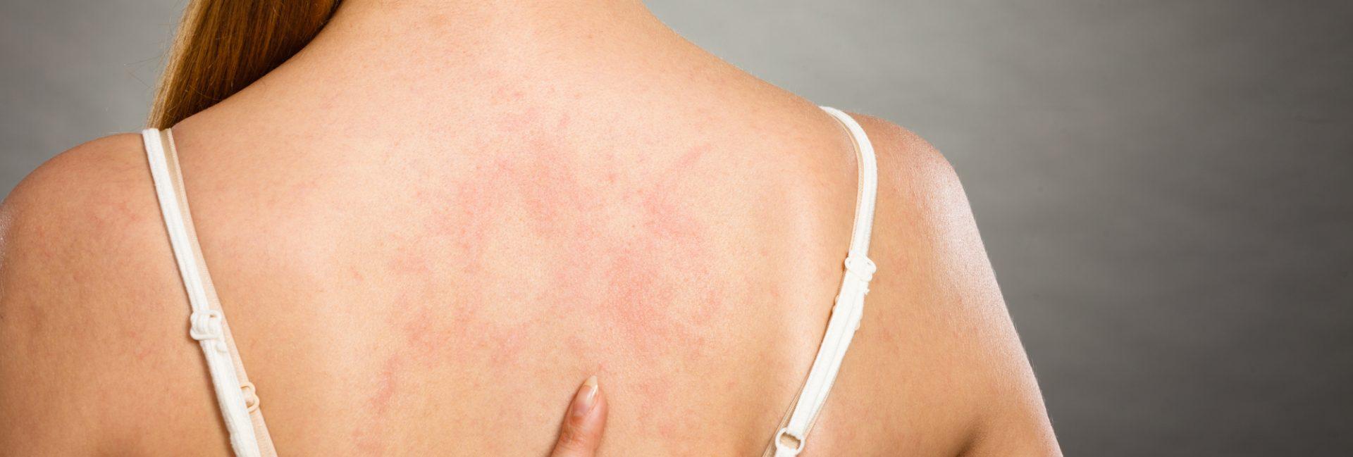 Eczema in Winter