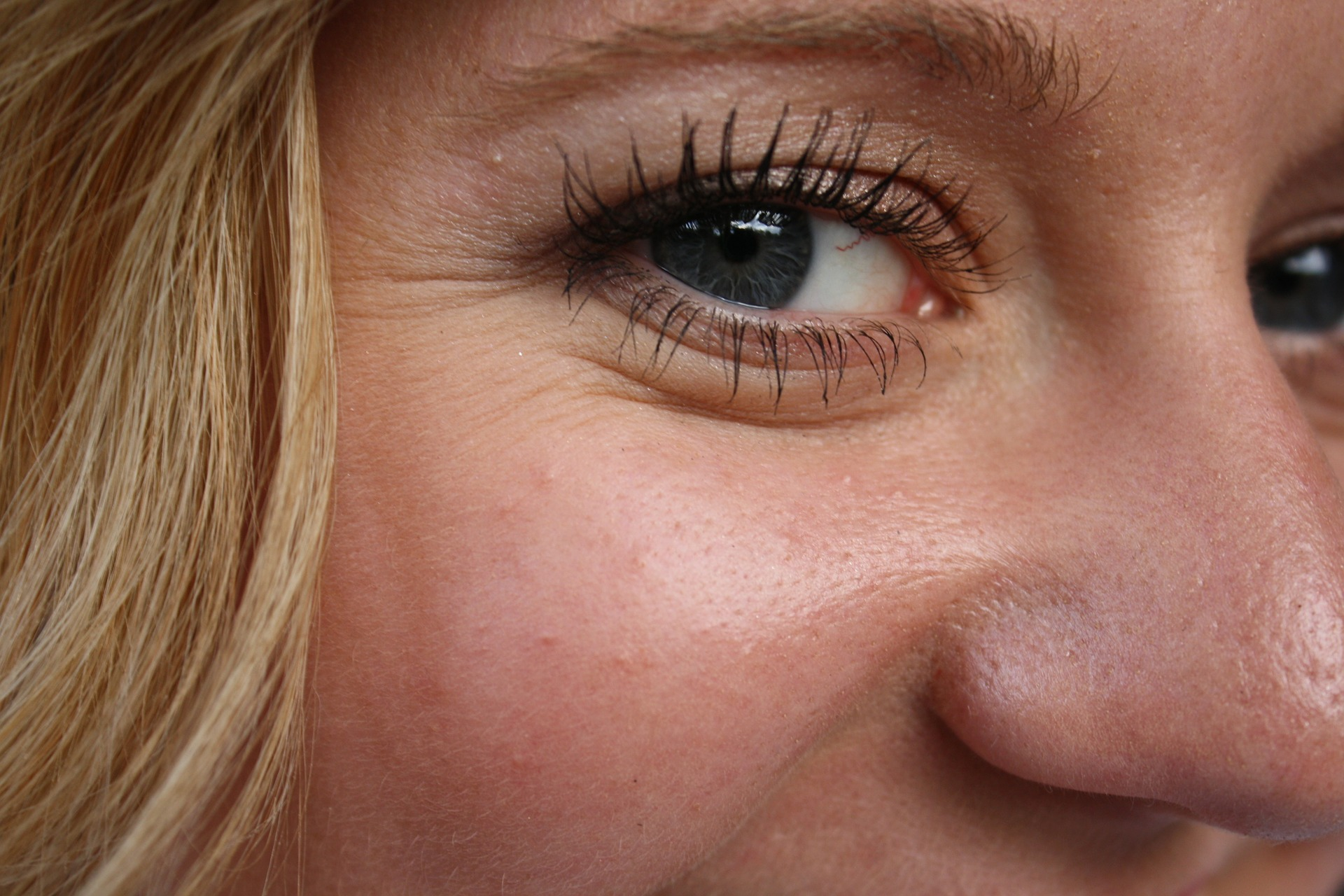 What Can a Botox Treatment Clinic Do for Me?